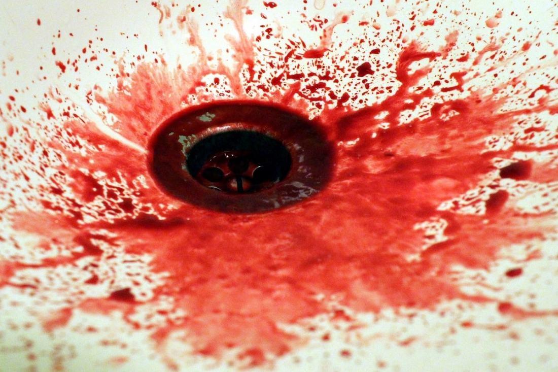Blut im Waschbecken. (Foto: Kawamaru, Pixabay.com; Creative Commons CC0)
